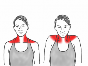 Neck Mobility - Shoulder Shrugs affecting the Trapezius