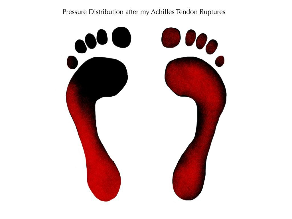 My Pressure Distributation on Feet after Achilles Tendon Ruptures- Foot Perspective - Alignment - Foot