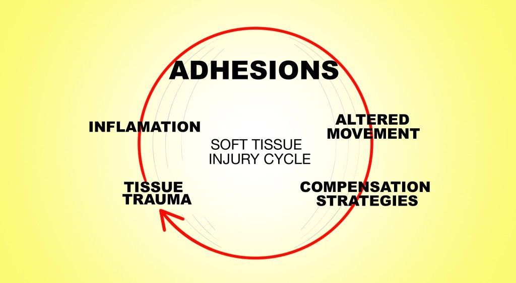 Soft Tissue Injury Cycle