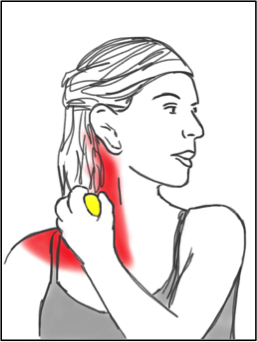 Soft Tissue Therapy - Balling the Trapezius and Neck - Front