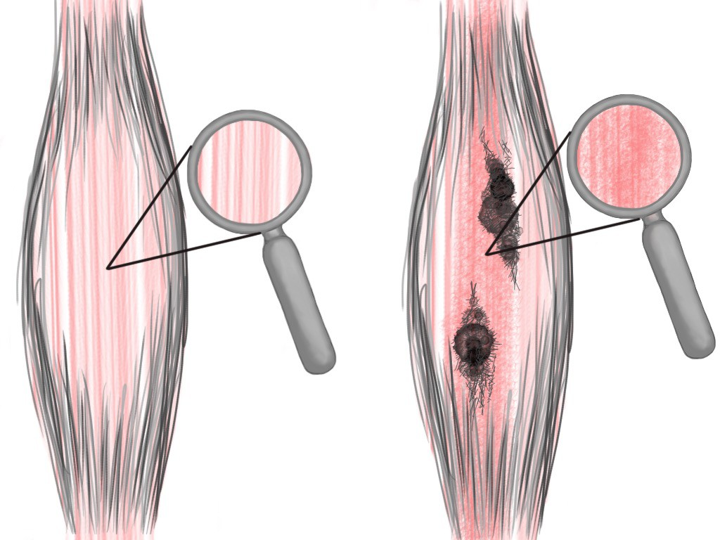 Soft Tissue Therapy - Knots and Adhesions Affect Striations in the Soft Tissue