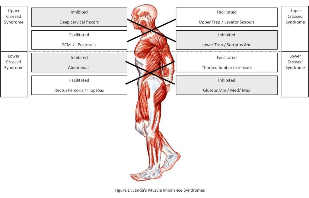 Janda Syndromes via www.jandaapproach.com