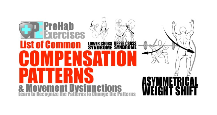 PreHab Exercise Blog - PreHab Exercises List of Common Compensatioon Patterns and Movement Dysfunctions
