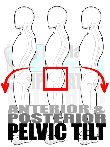 PreHab Exercise eBook - Alignment - Compensation Patterns - Anterior and Posterior Pelvic Tilt with Direction Lines