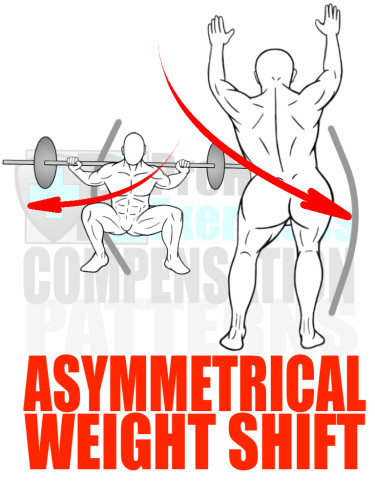PreHab Exercise eBook - Alignment - Compensation Patterns - Asymmetrical Weight Shift with Direction Lines