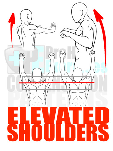 PreHab Exercise eBook - Alignment - Compensation Patterns - Elevated Shoulders with Direction Lines