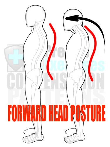 PreHab Exercise eBook - Alignment - Compensation Patterns - Forward Head Posture