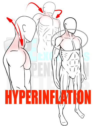 PreHab Exercise eBook - Alignment - Compensation Patterns - Hyperinflation with Direction Lines