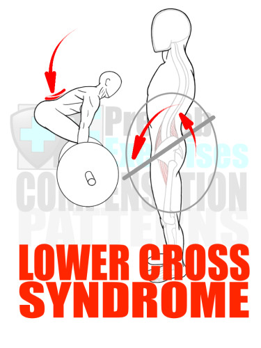 PreHab Exercise eBook - Alignment - Compensation Patterns -Lower Cross Syndrome with Direction Lines