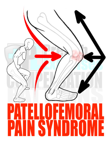 PreHab Exercise eBook - Alignment - Compensation Patterns - Patellofemoral Pain Syndrome - Sheer Froces - Close Up with Direction Lines