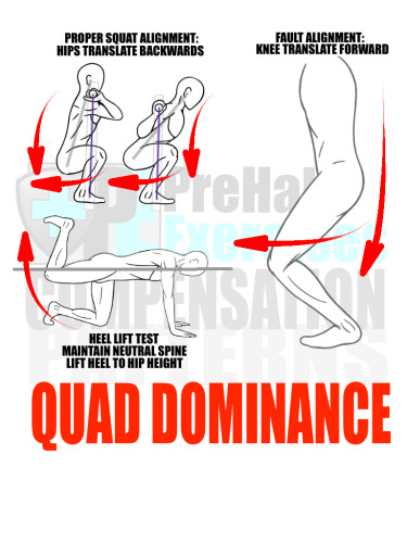 PreHab Exercise eBook - Alignment - Compensation Patterns - Quad Dominance with Direction Lines