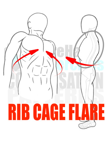 PreHab Exercise eBook - Alignment - Compensation Patterns -Rib Cage Flare with Direction Lines