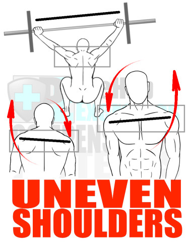 PreHab Exercise eBook - Alignment - Compensation Patterns - Uneven Shoulders with Direction Lines