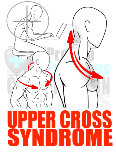 PreHab Exercise eBook - Alignment - Compensation Patterns -Upper Cross Syndrome with Direction Lines