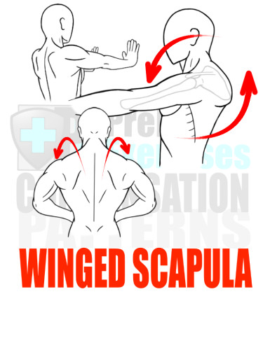 PreHab Exercise eBook - Alignment - Compensation Patterns - Winged Scapula with Direction Lines