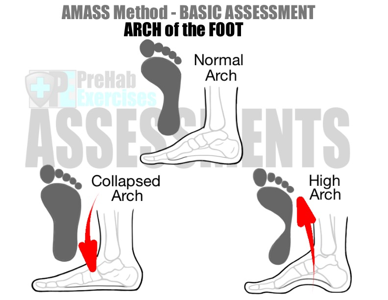 prehab-exercises-amass-method-basic-assessment-for-running-arch-of-the-foot