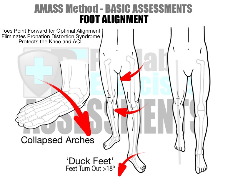 prehab-exercises-amass-method-basic-assessments-for-running-foot-alignment-optimal-alignment-eliminates-pronation-distortion-syndrome-and-acl-injuries
